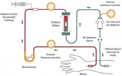 The Process of Hemodialysis Treatment